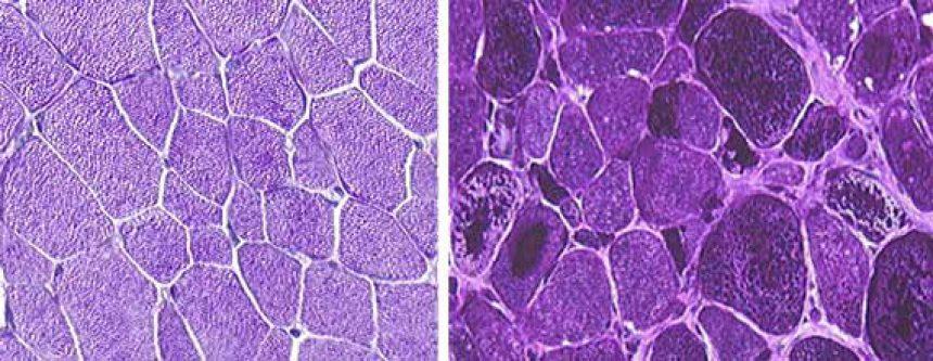 Valberg-biopsy-PSSM