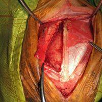 Surgery3 Resize