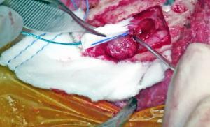 Surgery2 Resize
