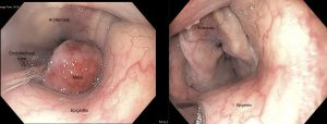 Larynx 6Mo Web