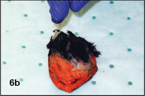 Surgical Margins Fig 6B Inked With Multiple Colors
