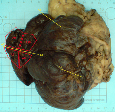 Liver Lobe With Mass