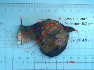 Surgical Margins Tumor On Digit