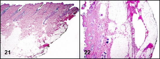 Surgical Margins Figs 21 22 Microscopic Evaluation
