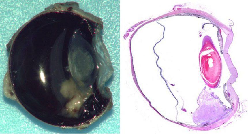 Iridociliary Adenoma