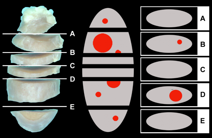 Sections Of Lymph Node